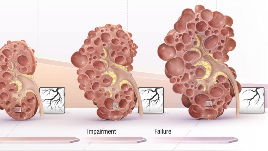 Autosomal Dominant Polycystic Kidney Disease (ADPKD), Otsuka