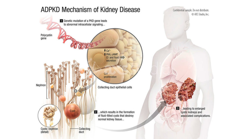 axs-studio-ADPKD-polycystic-kidney-medical-animation-021