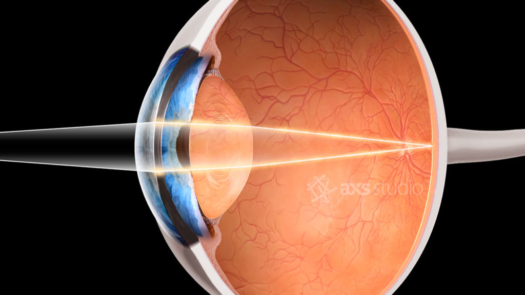 axs-studio-eye-section-ophthalmology-medical-animation-012