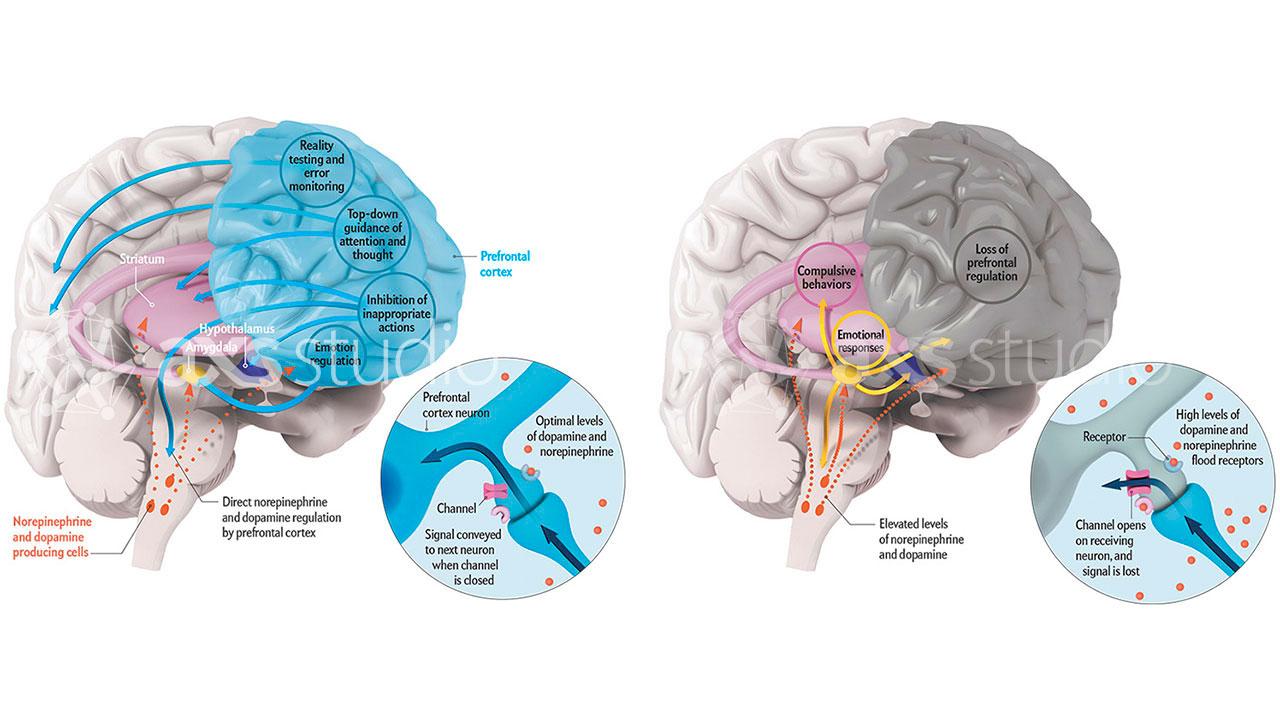 axs-studio-neurophysiology-stress-arnsten-scientific-illustration-011