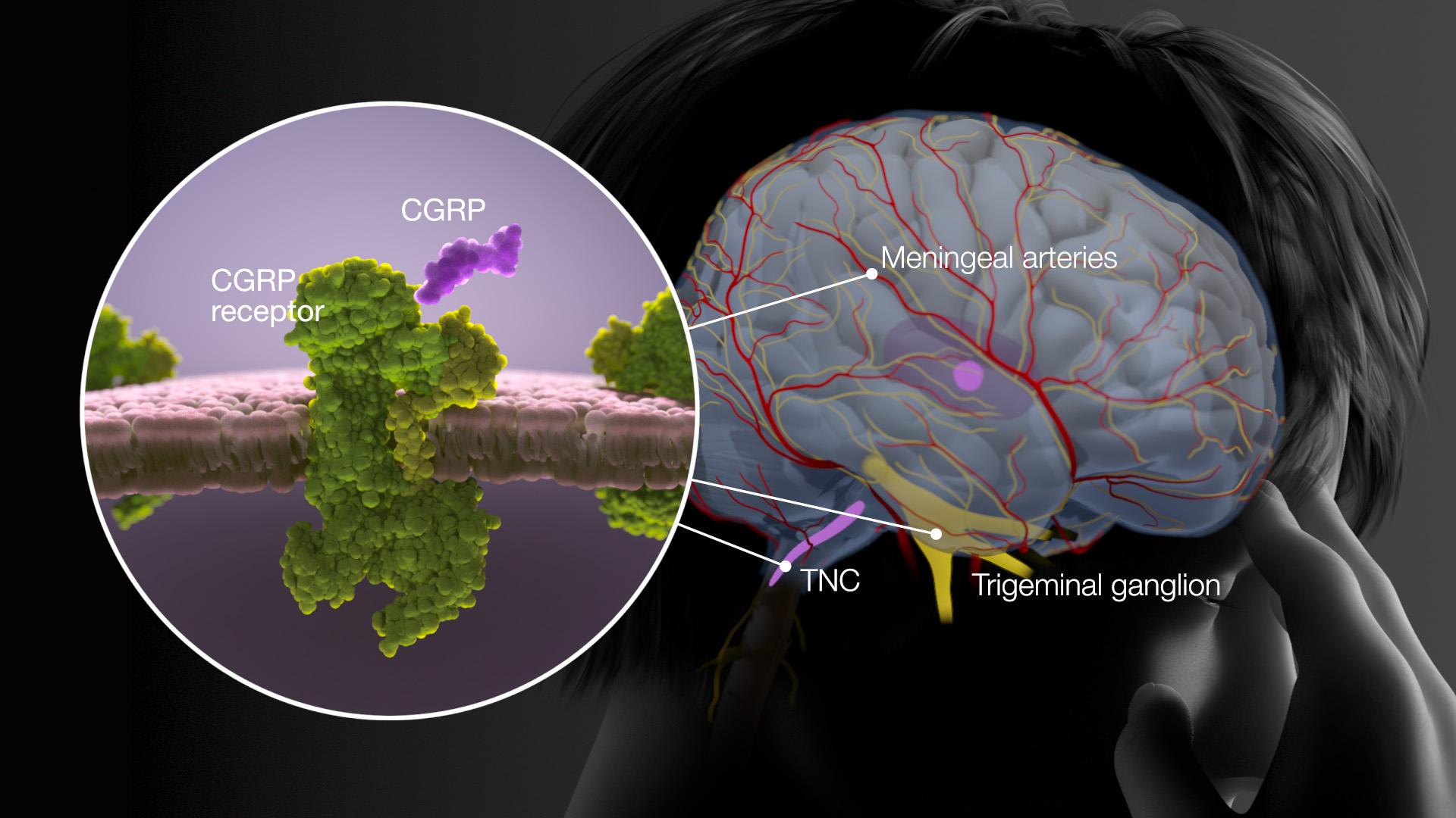 axs-studio-medical-animation-migraine-cgrp