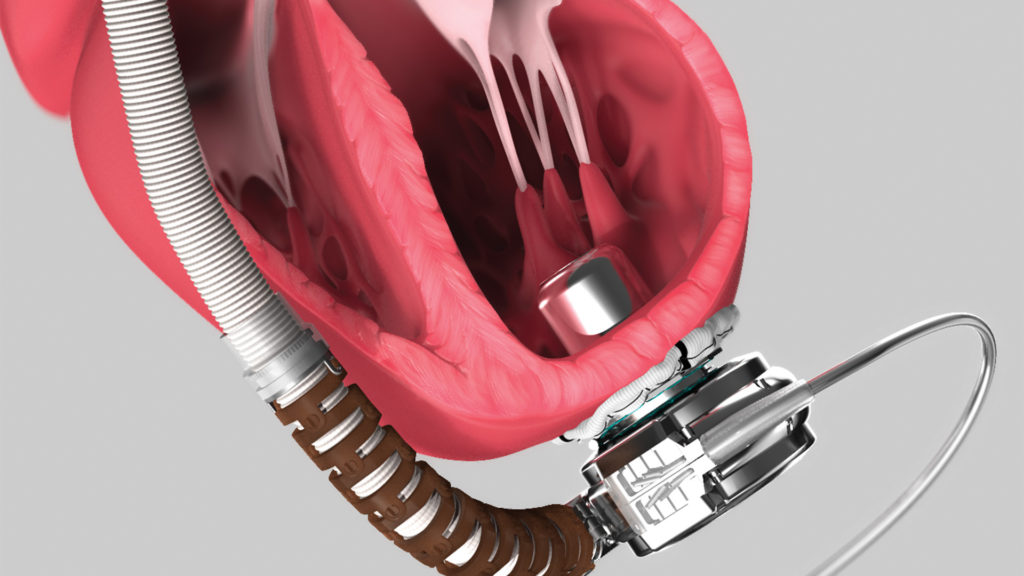 axs-studio-medical-device-animation-cardiothoracic-surgery-vad-01