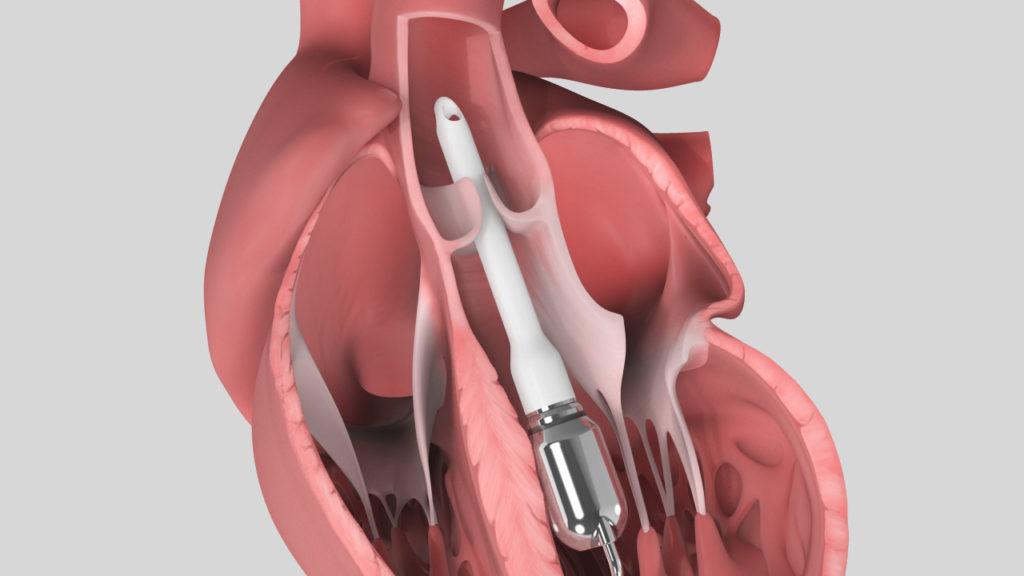 axs-studio-cardiothoracic-surgery-miniaturized-vad-medical-device-animation-02