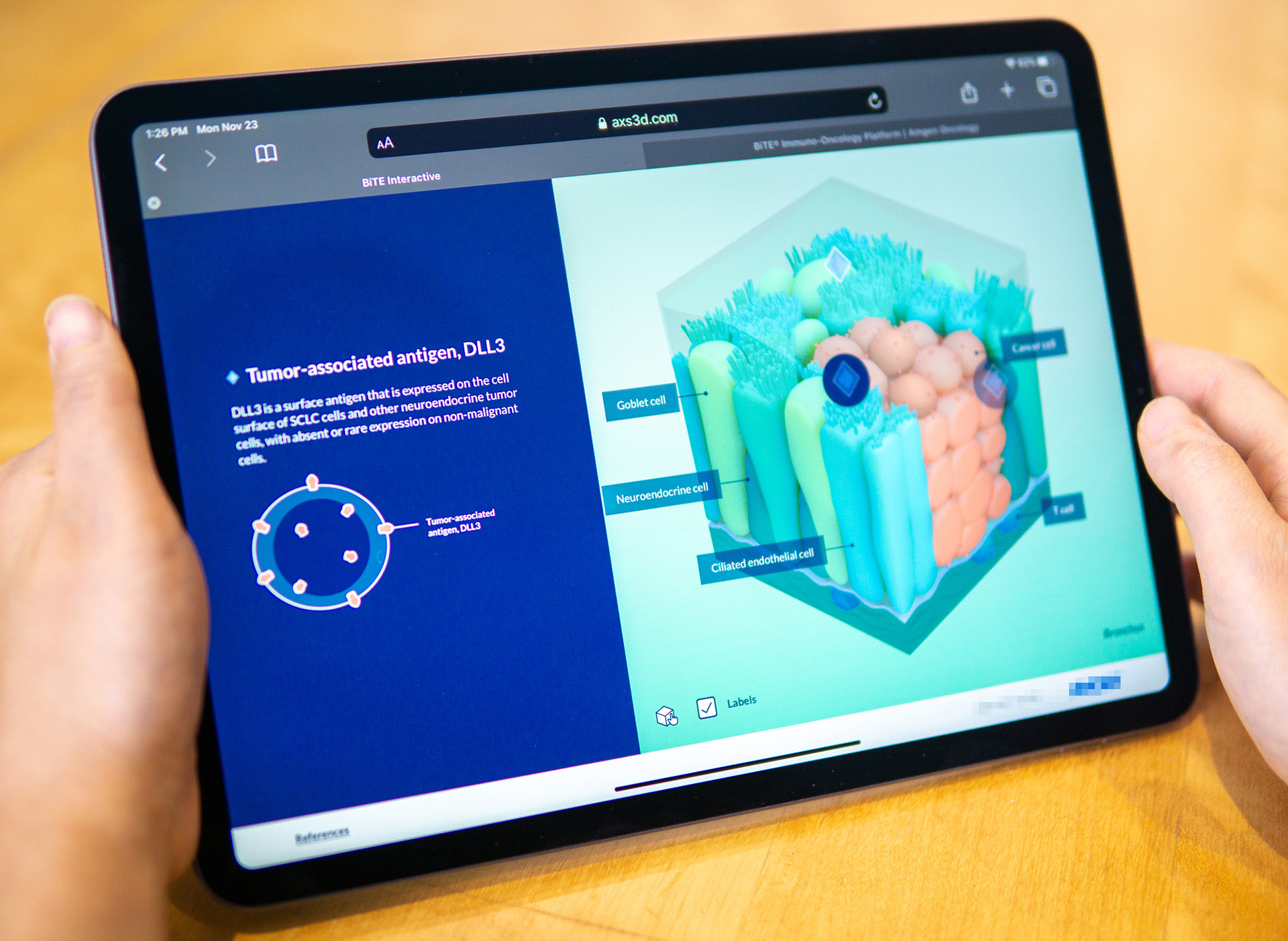 axs-studio-virtual-exhibit-oncology-interactive-05-drv-clean